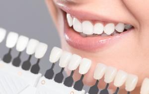 Hampaiden valkaisu Kemi